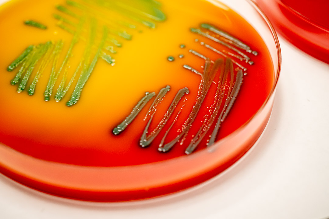 Challenge tests for pathogens